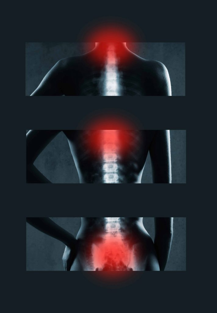Spine Expert Will Green